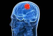 Progesterone could become tool versus brain cancer