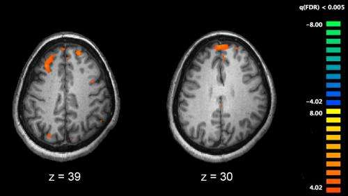Scans Show Possible Link Between Brain >> Study Shows The Brains Of People With Schizophrenia Related
