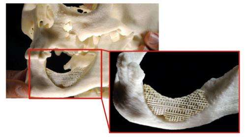 Shaped scaffolding helps repair mandibular bone