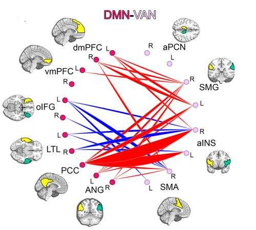 Brain Imaging Reveals Adhd As >> Slow To Mature Quick To Distract Adhd Study Finds Slower