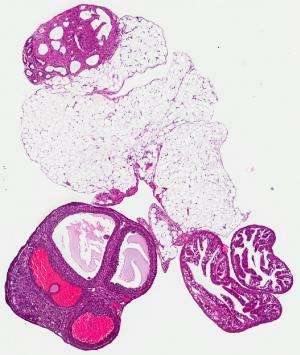 Study proposes new ovarian cancer targets