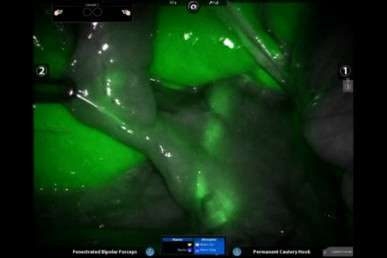 Surgeons 'light up' GI tract to safely remove gall bladder