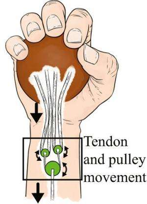 System designed to improve hand function lost to nerve damage