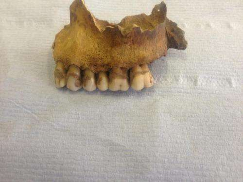 Team discovers first evidence of milk consumption in ancient dental plaque