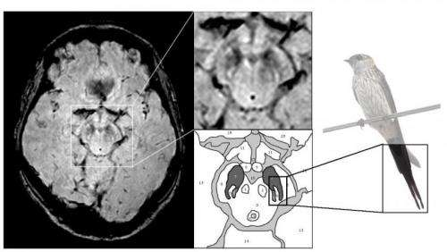 'Tell-tail' MRI image diagnosis for Parkinson's disease