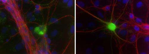 Toxin from brain cells triggers neuron loss in human ALS model