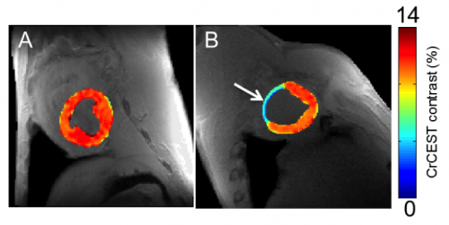 Tweaking MRI to track creatine may spot heart problems earlier, Penn Medicine study suggests