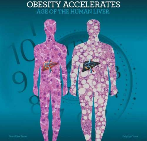 Using a novel biological aging clock, UCLA researchers find obesity accelerates aging of the liver