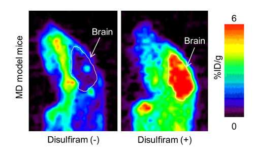 Using PET scanning to evaluate therapies of Menkes disease