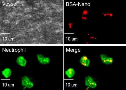 Nanoparticles target anti-inflammatory drugs where needed