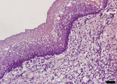 Researchers transplant regenerated oesophagus