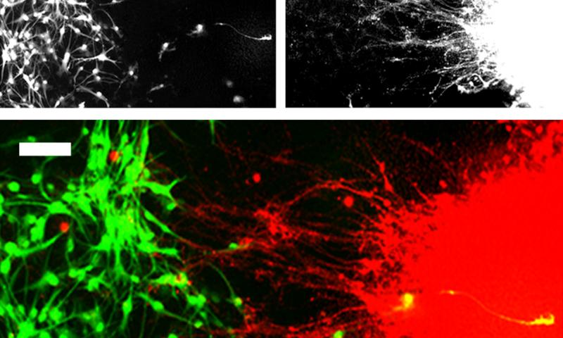 Researchers develop new technique for modeling neuronal connectivity using stem cells