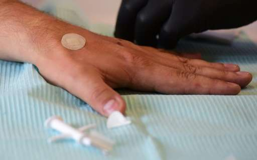 A Kaspersky employee has a microchip implanted in his hand ahead of the IFA consumer electronics fair in Berlin, on September 3,