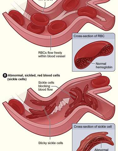 An easy test for sickle cell disease