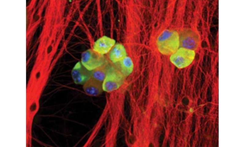 Discovery shows how herpes simplex virus reactivates in neurons to trigger disease