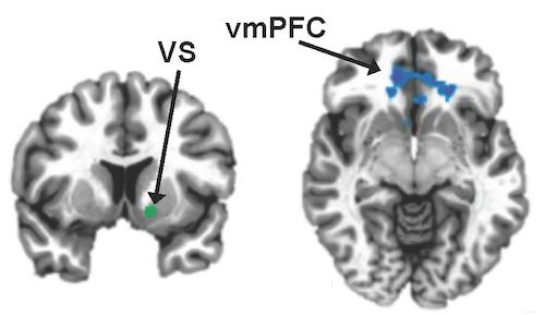 Inflammation linked to weakened reward circuits in depression