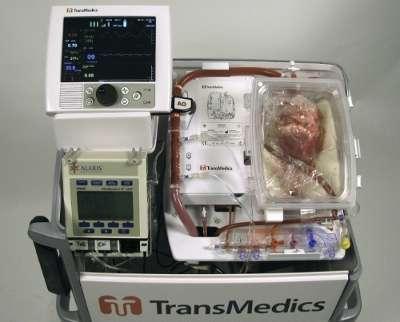 Outside the body, a heart beats via life-saving system