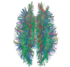Recording the entire nervous system in real time will unlock secrets of the brain