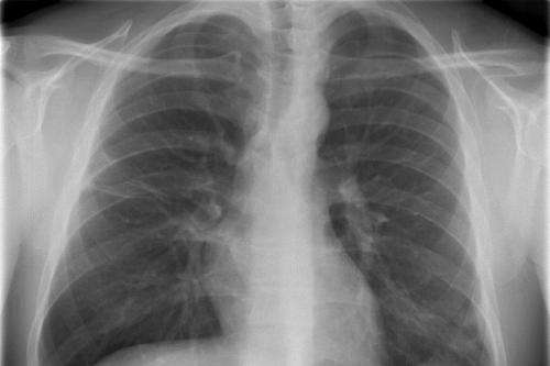 Research could be life-prolonging for cystic fibrosis patients