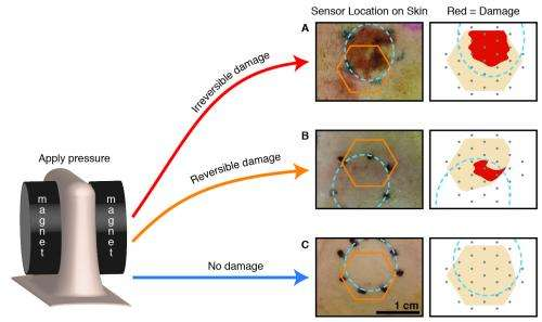 'Smart bandage' detects bed sores before they are visible to doctors