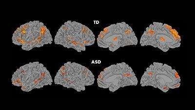 Social Stress Brain Circuitry Fails To >> Social Stress Brain Circuitry Fails To Connect In Children With Autism