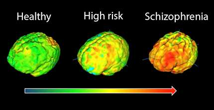 Study Suggests Brain Inflammation Is >> Study Finds Inflammation In The Brain Is Linked To Risk Of Schizophrenia