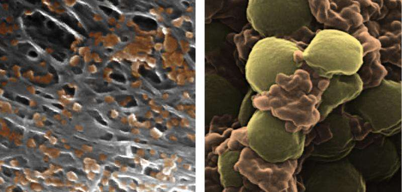 Targeted drug delivery with these nanoparticles can make medicines more effective
