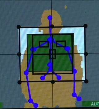 Xbox gaming technology may improve X-ray precision