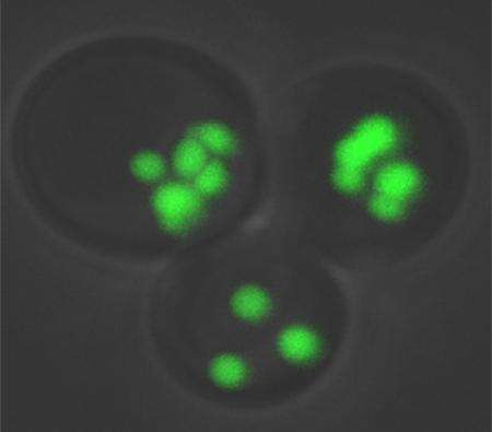 Yeast protein network could provide insights into human obesity