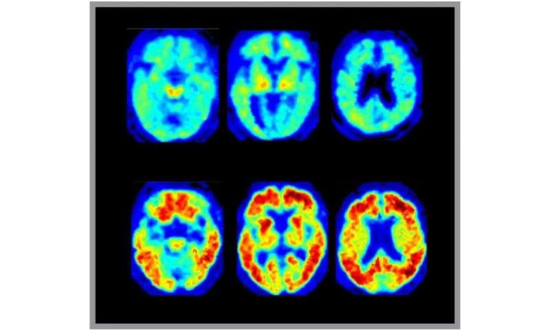 Research seeks to enhance understanding of how Alzheimer's Disease develops