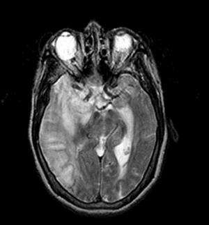 New research finds failing to weigh emergency stroke patients leads to wrong dose of drugs