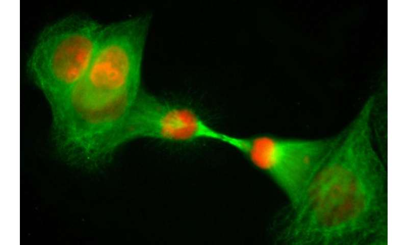 Researchers discover that aspartate is a limiter of cell proliferation