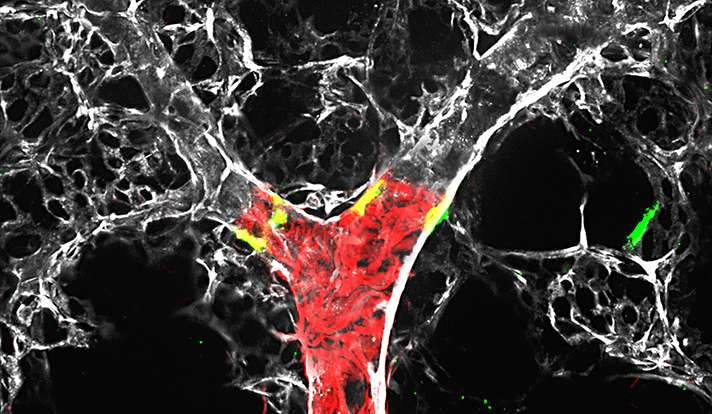 Scientists identify potential therapeutic target for pulmonary hypertension