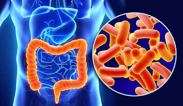 Study identifies key protein that contributes to colitis