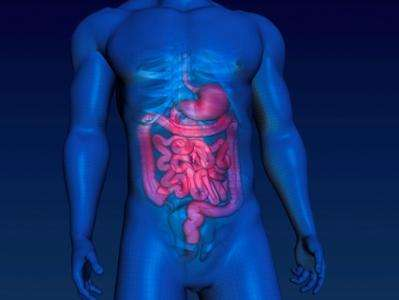 """Immune system """"œfriendly fire€"""" could be to blame for bowel cancer deaths"""