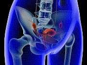 Minimally invasive hysterectomy may be underused