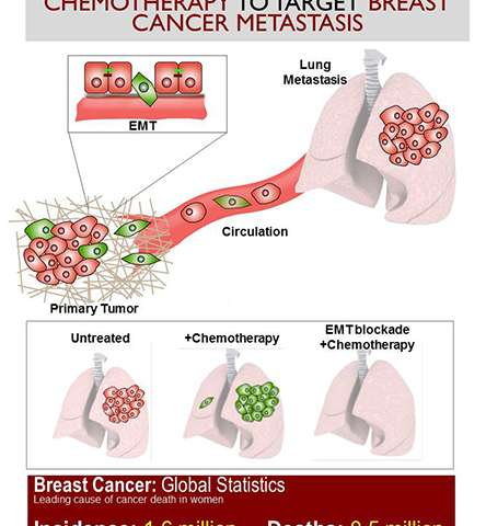 Study of breast cancer metastasis upends conventional wisdom, suggesting new treatment strategy