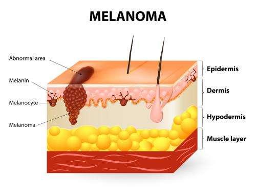 Sun damage and cancer