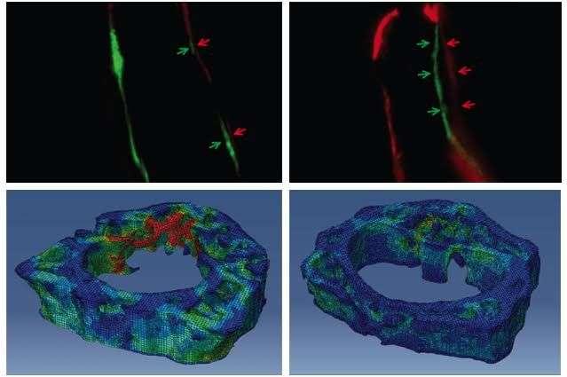 Study reveals bone-building protein's impact on bone stem cells