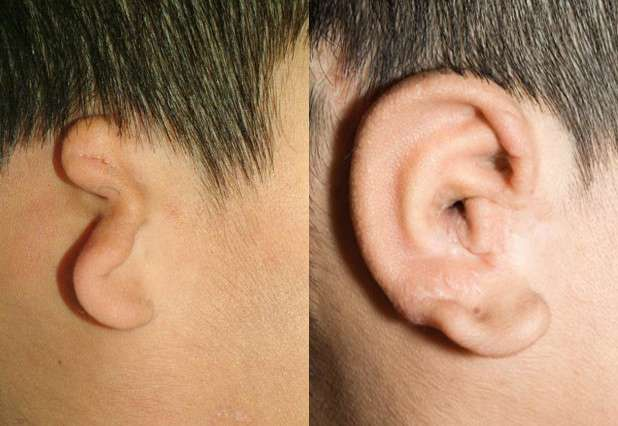 3-D printing techniques help surgeons carve new ears