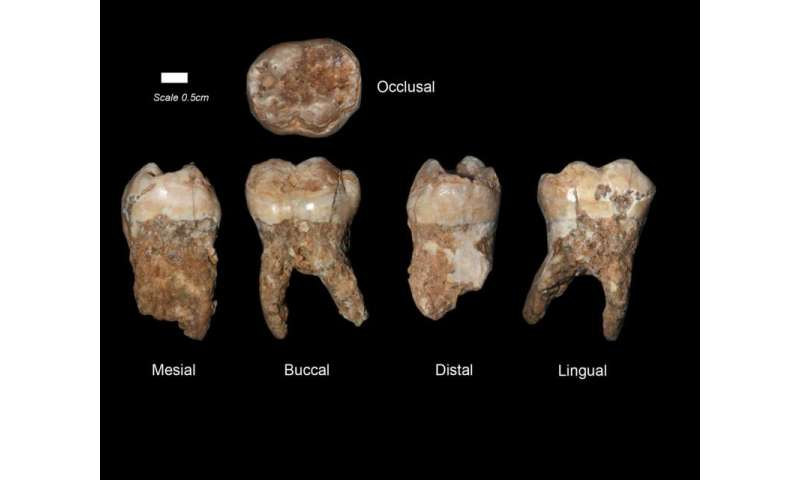 400,000-year-old dental tartar provides earliest evidence of manmade pollution