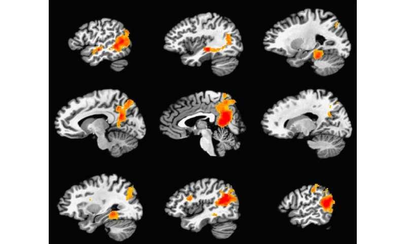 Study reveals brain mechanism for creating durable memories
