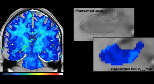 Blood vessels in older brains break down, possibly leading to Alzheimer's