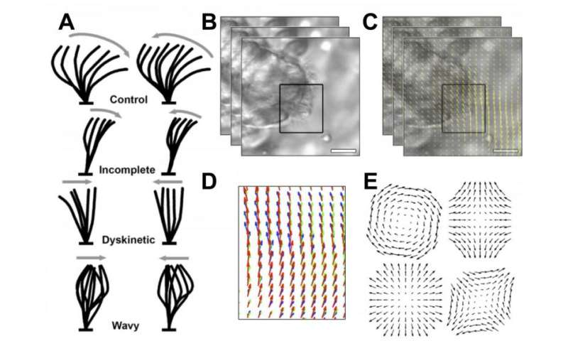Team gets the beat, develops method of quantifying ciliary movement