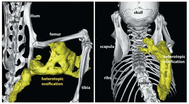 How Can a Genetic Mutation Cause Muscle to Turn into Bone?