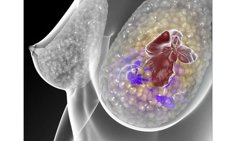 Hormone treatments for breast cancer casual concurrence