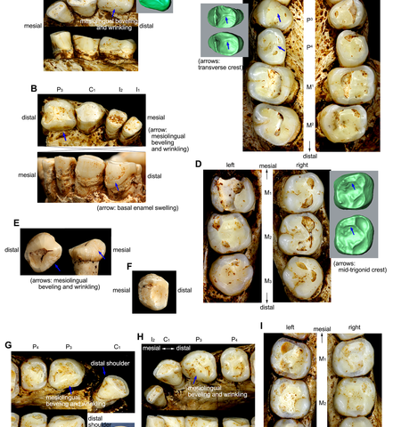 Dental analysis suggests Homo floresiensis was a separate species from modern man