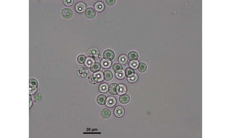 Research project identifies microalgae with health-giving omega-3-type fatty acids