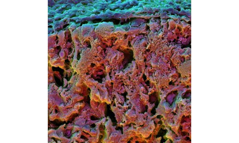 A better way to grow bone cells