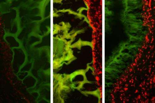 Researchers design tailored tissue adhesives